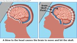 concussion-415x233-rd3-enIL